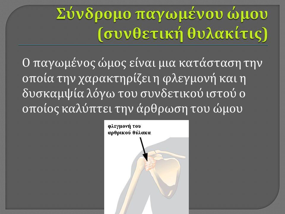 Ο παγωμένος ώμος είναι μια κατάσταση την οποία την χαρακτηρίζει η φλεγμονή και η δυσκαμψία λόγω του συνδετικού ιστού ο οποίος καλύπτει την άρθρωση του ώμου