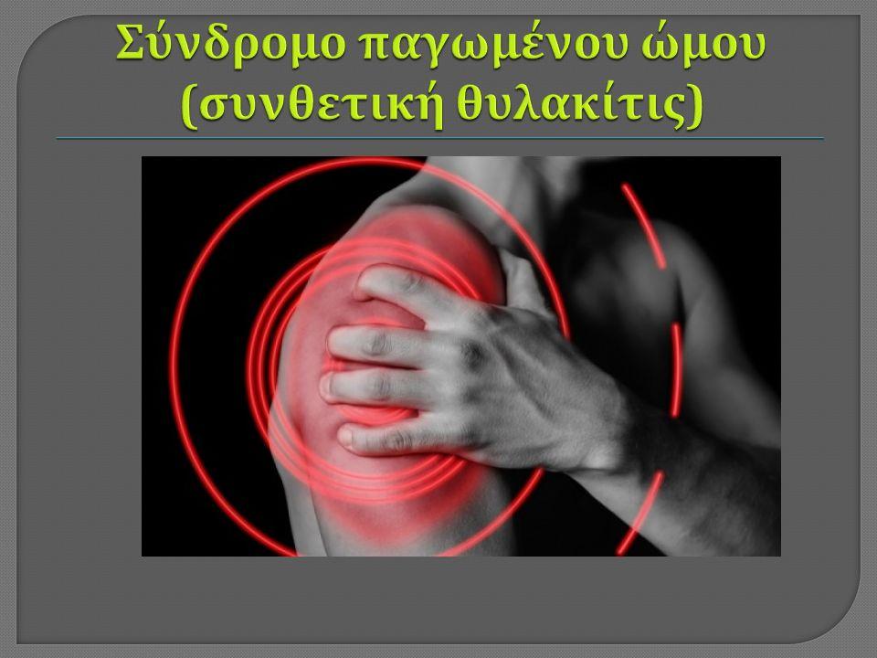 Πρώτο στάδιο : Εισβολή πόνου και έναρξη μείωσης του εύρους κινήσεων απαγωγής και στροφών.
