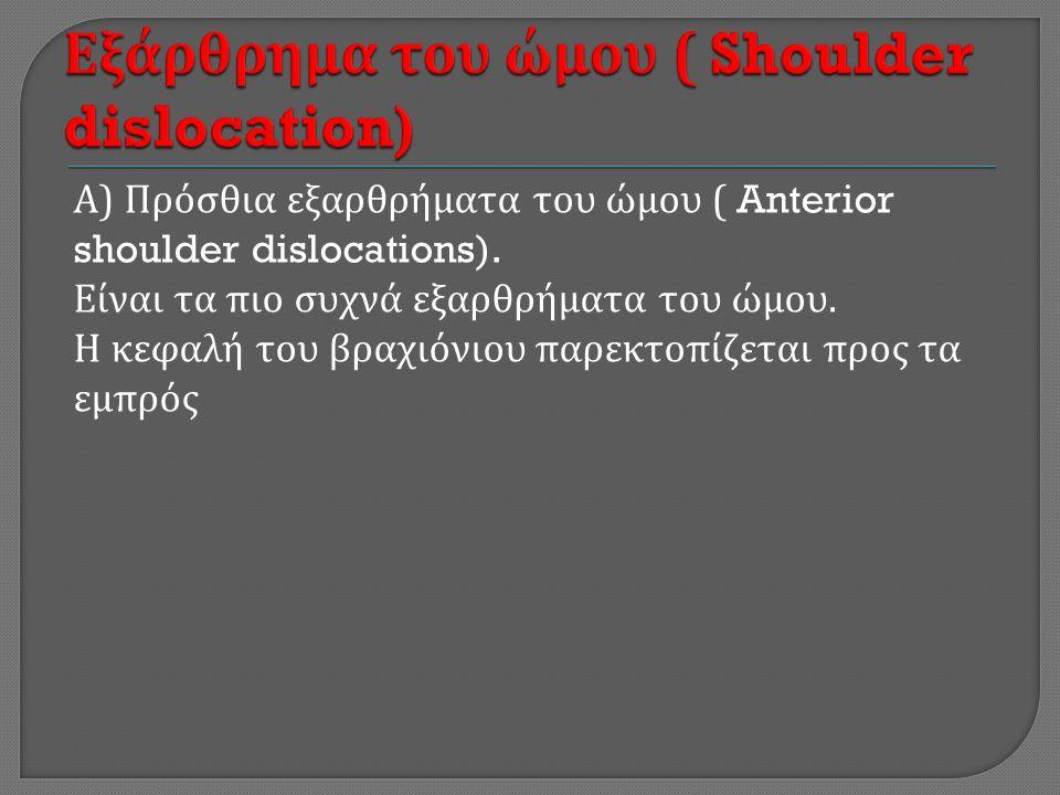 Α ) Πρόσθια εξαρθρήματα του ώμου ( Anterior shoulder dislocations).