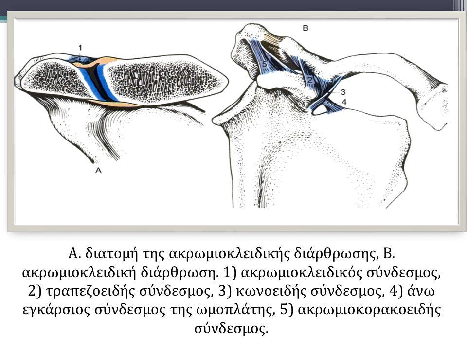 Α. διατομή της ακρωμιοκλειδικής διάρθρωσης, Β. ακρωμιοκλειδική διάρθρωση. 1) ακρωμιοκλειδικός σύνδεσμος, 2) τραπεζοειδής σύνδεσμος, 3) κωνοειδής σύνδε