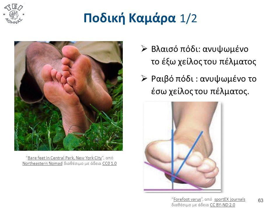 """Ποδική Καμάρα 1/2 63  Βλαισό πόδι: ανυψωμένο το έξω χείλος του πέλματος  Ραιβό πόδι : ανυψωμένο το έσω χείλος του πέλματος. """"Forefoot varus"""", από sp"""