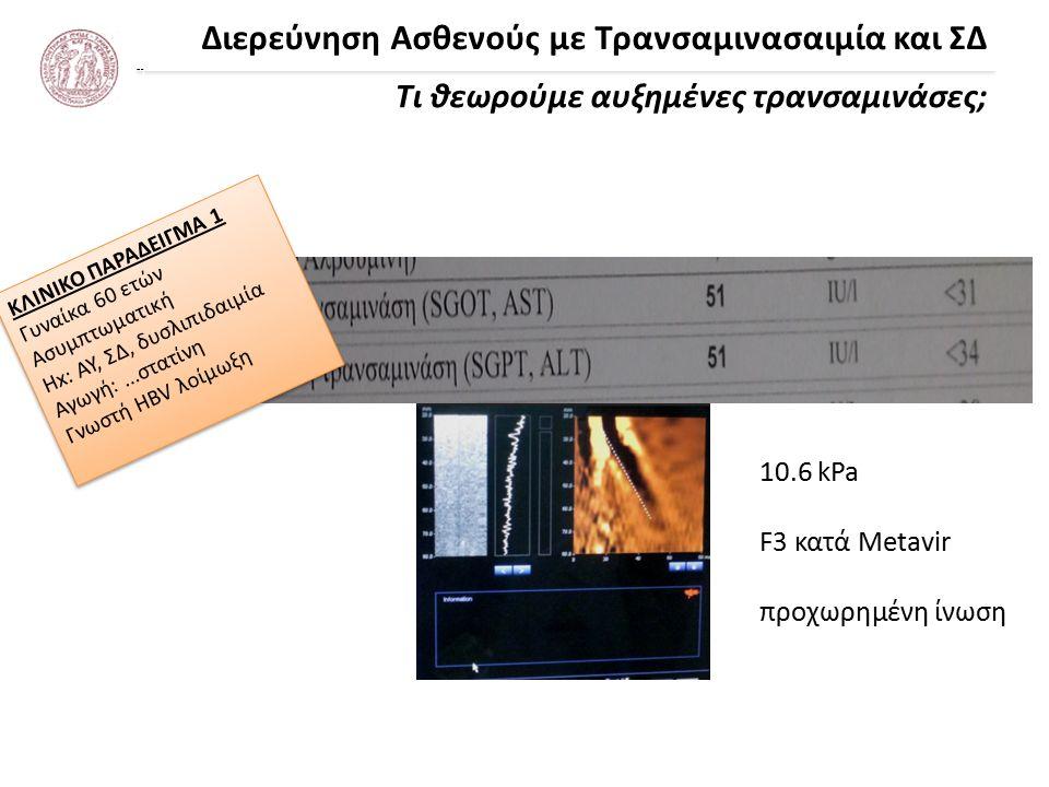 Διερεύνηση Ασθενούς με Τρανσαμινασαιμία και ΣΔ Τι θεωρούμε αυξημένες τρανσαμινάσες; *Prati et al Ann Intern Med 2002 Χρησιμοποιείτε μια τιμή ως UNL -40 IU/L (κλασσική τιμή) -19 IU/L (γυναίκες) & 30 IU/L (άνδρες)* -μη βασίζεστε στα UNL των εργαστηρίων Μη χρησιμοποιείτε X UNL ως κριτήρια για λήψη αποφάσεων Εργαστήρια: Κριτήρια επιλογής πληθυσμού αναφοράς ???