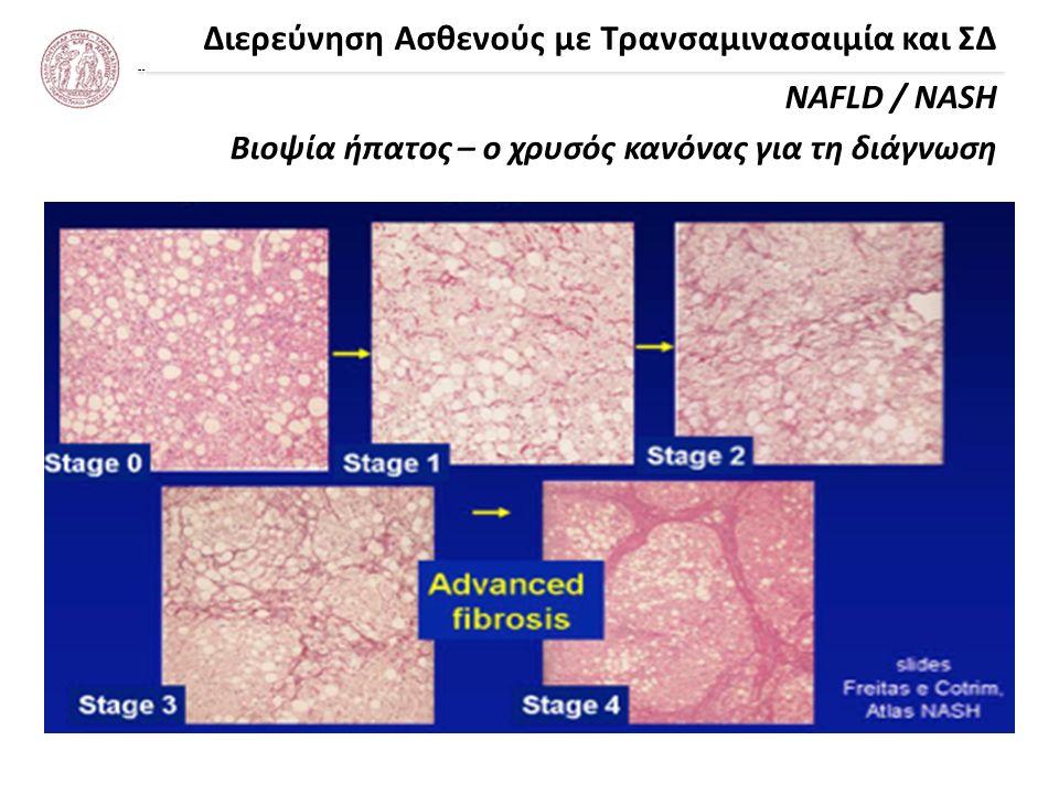 Διερεύνηση Ασθενούς με Τρανσαμινασαιμία και ΣΔ NAFLD / NASH Βιοψία ήπατος – ο χρυσός κανόνας για τη διάγνωση