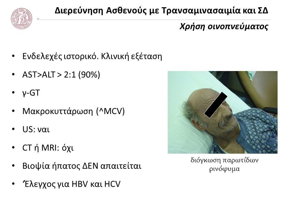 Διερεύνηση Ασθενούς με Τρανσαμινασαιμία και ΣΔ Χρήση οινοπνεύματος - Κλινικό Παράδειγμα Νηπιαγωγός 28 ετών με ασκίτη πυλαίας υπέρτασης HBV & HCV (-), AST/ALT = 1:1 Φάρμακα (-), Αλκοόλ (-) Έλεγχος ΑΗ και για αγγειακά αίτια (-) α1-ΑΤ, Wilson, αιμοχρωμάτωση (-) Σπάνια συστηματικά νοσήματα (-)