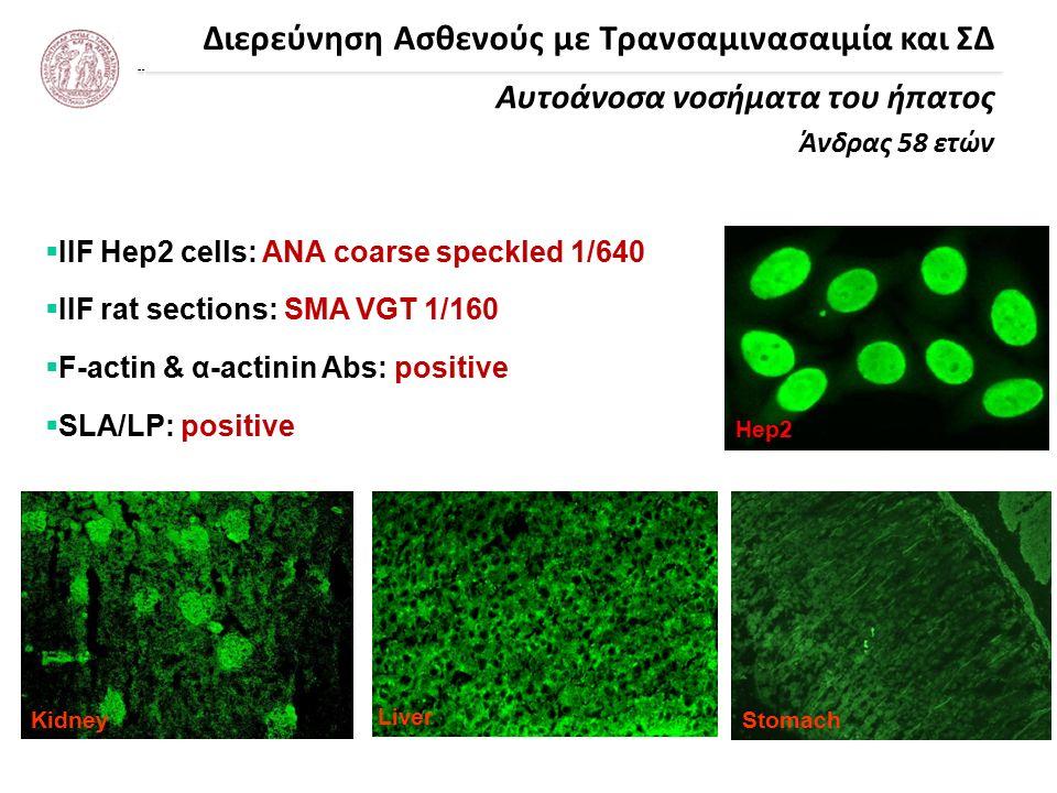 Διερεύνηση Ασθενούς με Τρανσαμινασαιμία και ΣΔ Αυτοάνοσα νοσήματα του ήπατος Άνδρας 58 ετών Liver Hep2 KidneyStomach  IIF Hep2 cells: ANA coarse speckled 1/640  IIF rat sections: SMA VGT 1/160  F-actin & α-actinin Abs: positive  SLA/LP: positive