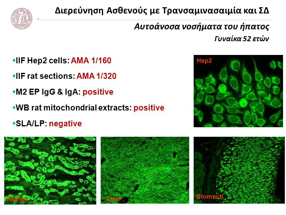 Διερεύνηση Ασθενούς με Τρανσαμινασαιμία και ΣΔ Αυτοάνοσα νοσήματα του ήπατος Γυναίκα 52 ετών Liver Stomach Hep2 Kidney  IIF Hep2 cells: AMA 1/160  IIF rat sections: AMA 1/320  Μ2 EP IgG & IgA: positive  WB rat mitochondrial extracts: positive  SLA/LP: negative
