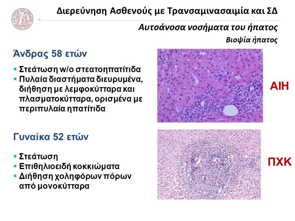 Διερεύνηση Ασθενούς με Τρανσαμινασαιμία και ΣΔ Αυτοάνοσα νοσήματα του ήπατος Βιοψία ήπατος Άνδρας 58 ετών Γυναίκα 52 ετών  Στεάτωση w/o στεατοηπατίτιδα  Πυλαία διαστήματα διευρυμένα, διήθηση με λεμφοκύτταρα και πλασματοκύτταρα, ορισμένα με περιπυλαία ηπατίτιδα  Στεάτωση  Επιθηλιοειδή κοκκιώματα  Διήθηση χοληφόρων πόρων από μονοκύτταρα ΑΙΗ ΠΧΚ