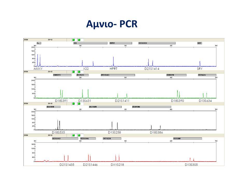 Αμνιο- PCR