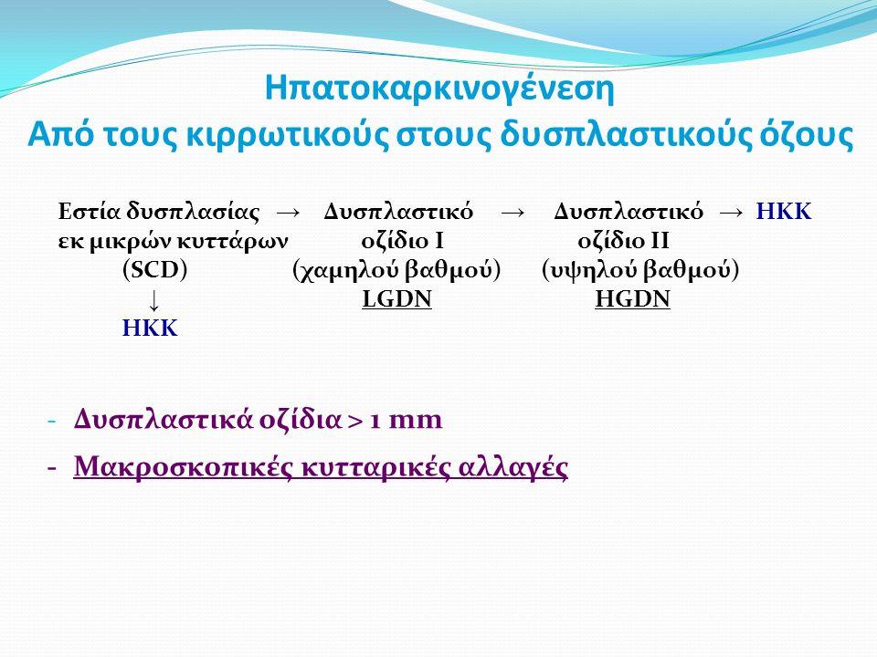 Ηπατοκαρκινογένεση Από τους κιρρωτικούς στους δυσπλαστικούς όζους Εστία δυσπλασίας → Δυσπλαστικό → Δυσπλαστικό → HKK εκ μικρών κυττάρων οζίδιο I οζίδιο II (SCD) (χαμηλού βαθμού) (υψηλού βαθμού) ↓ LGDN HGDN HKK - Δυσπλαστικά οζίδια > 1 mm -Μακροσκοπικές κυτταρικές αλλαγές