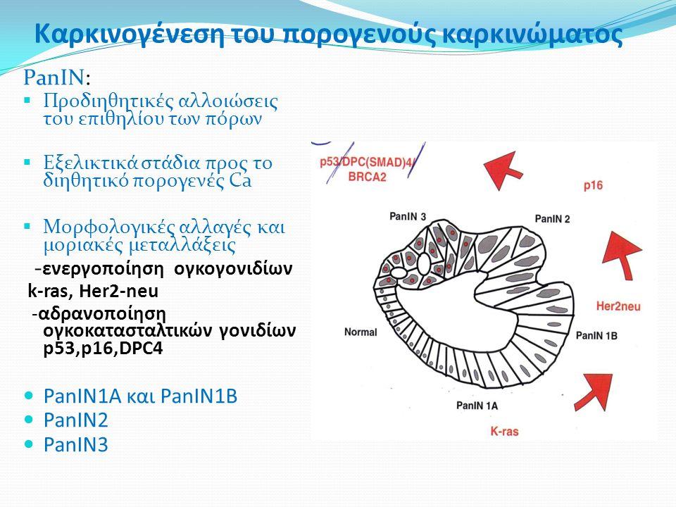 Καρκινογένεση του πορογενούς καρκινώματος PanIN:  Προδιηθητικές αλλοιώσεις του επιθηλίου των πόρων  Eξελικτικά στάδια προς το διηθητικό πορογενές Ca  Mορφολογικές αλλαγές και μοριακές μεταλλάξεις - ενεργοποίηση ογκογονιδίων k-ras, Her2-neu -αδρανοποίηση ογκοκατασταλτικών γονιδίων p53,p16,DPC4 PanIN1Α και PanIN1Β PanIN2 PanIN3
