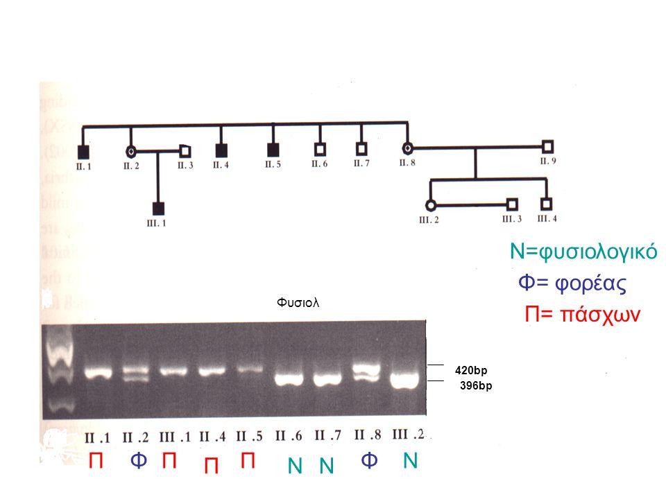 Φυσιολ N=φυσιολογικό Φ= φορέας Π= πάσχων ΝΝ ΝΦΦΠΠ Π Π 396bp 420bp