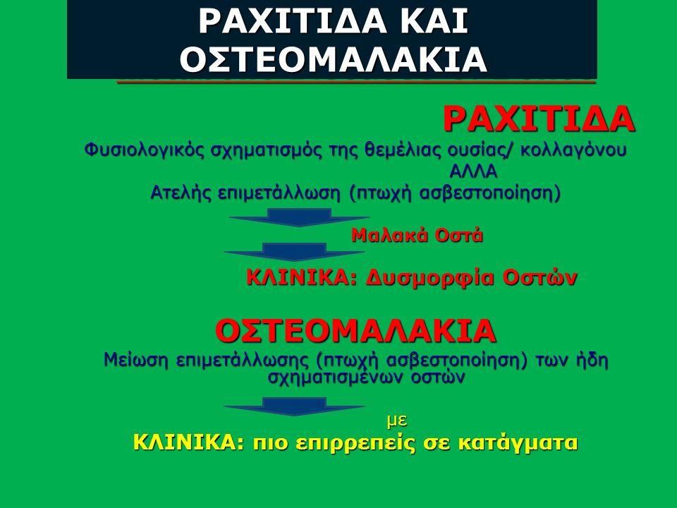 Metabolic Diseases of Bones ΡΑΧΙΤΙΔΑ ΡΑΧΙΤΙΔΑ Φυσιολογικός σχηματισμός της θεμέλιας ουσίας/ κολλαγόνου ΑΛΛΑ ΑΛΛΑ Ατελής επιμετάλλωση (πτωχή ασβεστοποίηση) Μαλακά Οστά Μαλακά Οστά ΚΛΙΝΙΚΑ: Δυσμορφία Οστών ΚΛΙΝΙΚΑ: Δυσμορφία ΟστώνΟΣΤΕΟΜΑΛΑΚΙΑ Μείωση επιμετάλλωσης (πτωχή ασβεστοποίηση) των ήδη σχηματισμένων οστών με με ΚΛΙΝΙΚΑ: πιο επιρρεπείς σε κατάγματα ΡΑΧΙΤΙΔΑ ΚΑΙ ΟΣΤΕΟΜΑΛΑΚΙΑ