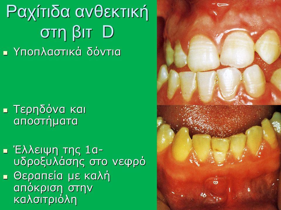 Ραχίτιδα ανθεκτική στη βιτ D Υποπλαστικά δόντια Υποπλαστικά δόντια Τερηδόνα και αποστήματα Τερηδόνα και αποστήματα Έλλειψη της 1α- υδροξυλάσης στο νεφρό Έλλειψη της 1α- υδροξυλάσης στο νεφρό Θεραπεία με καλή απόκριση στην καλσιτριόλη Θεραπεία με καλή απόκριση στην καλσιτριόλη