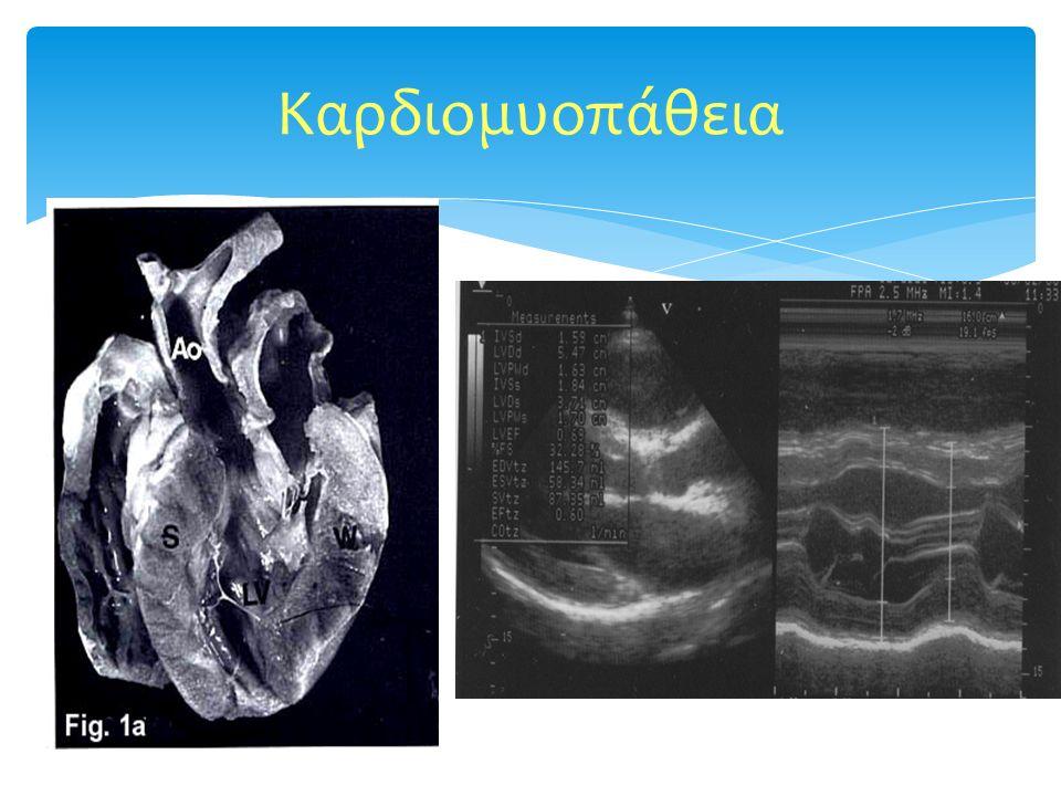 Καρδιομυοπάθεια