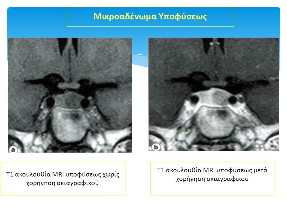 Τ1 ακουλουθία ΜRI υποφύσεως χωρίς χορήγηση σκιαγραφικού Τ1 ακουλουθία ΜRI υποφύσεως μετά χορήγηση σκιαγραφικού Μικροαδένωμα Υποφύσεως
