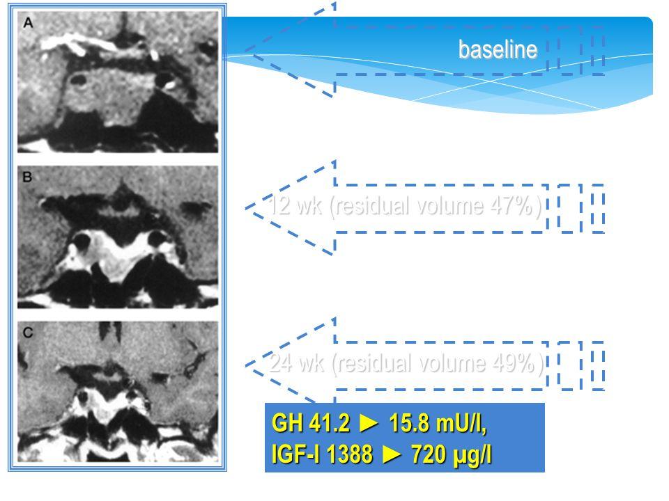 GH 41.2 ► 15.8 mU/l, IGF-I 1388 ► 720 µg/l baseline 12 wk (residual volume 47%) 24 wk (residual volume 49%)