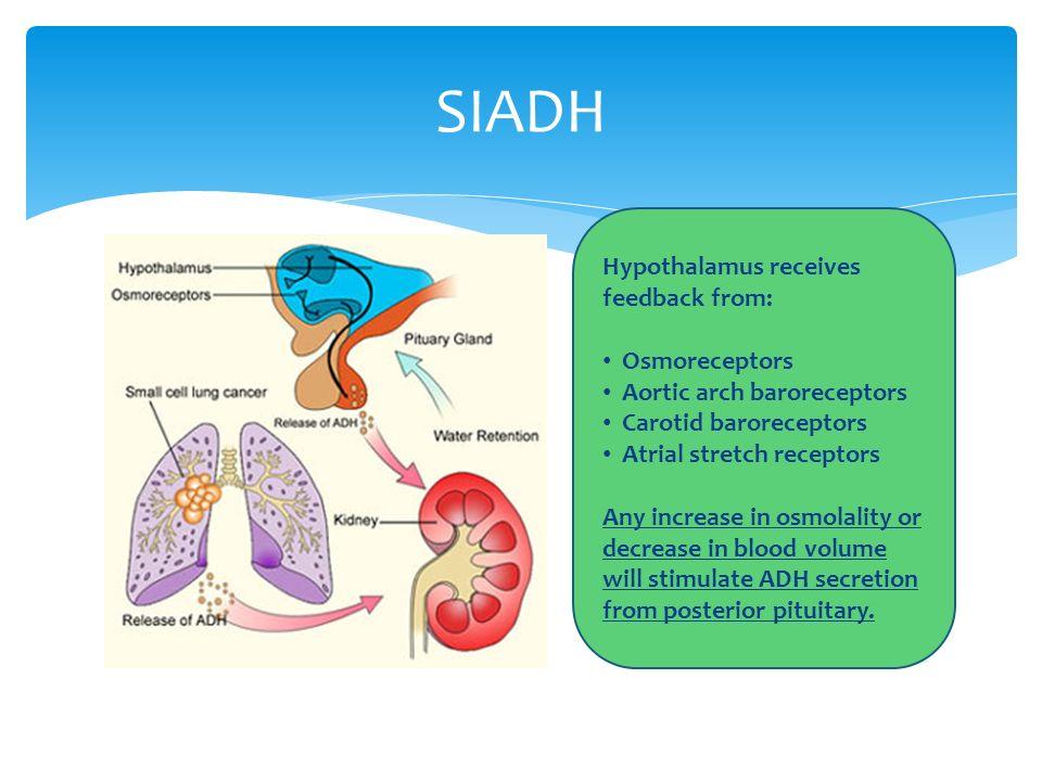 SIADH Hypothalamus receives feedback from: Osmoreceptors Aortic arch baroreceptors Carotid baroreceptors Atrial stretch receptors Any increase in osmo