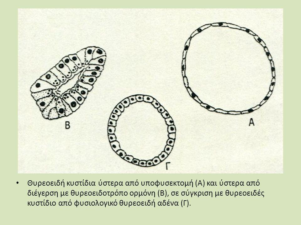 Θυρεοειδή κυστίδια ύστερα από υποφυσεκτομή (Α) και ύστερα από διέγερση με θυρεοειδοτρόπο ορμόνη (Β), σε σύγκριση με θυρεοειδές κυστίδιο από φυσιολογικό θυρεοειδή αδένα (Γ).