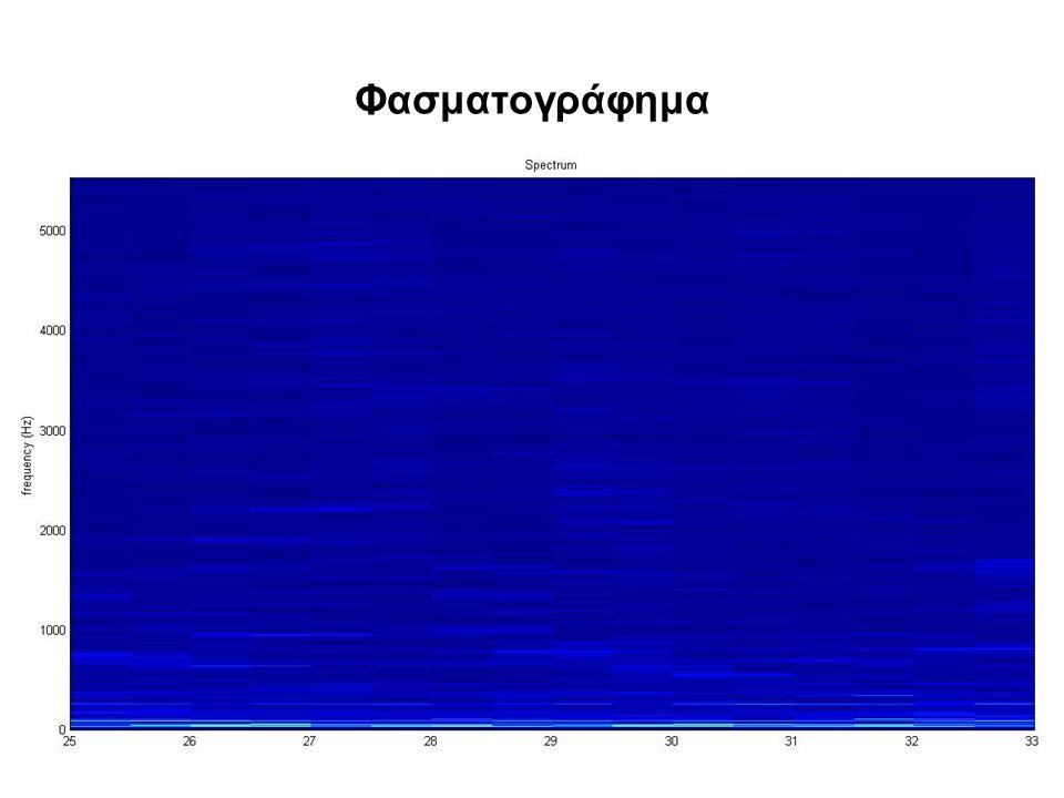 Φασματογράφημα
