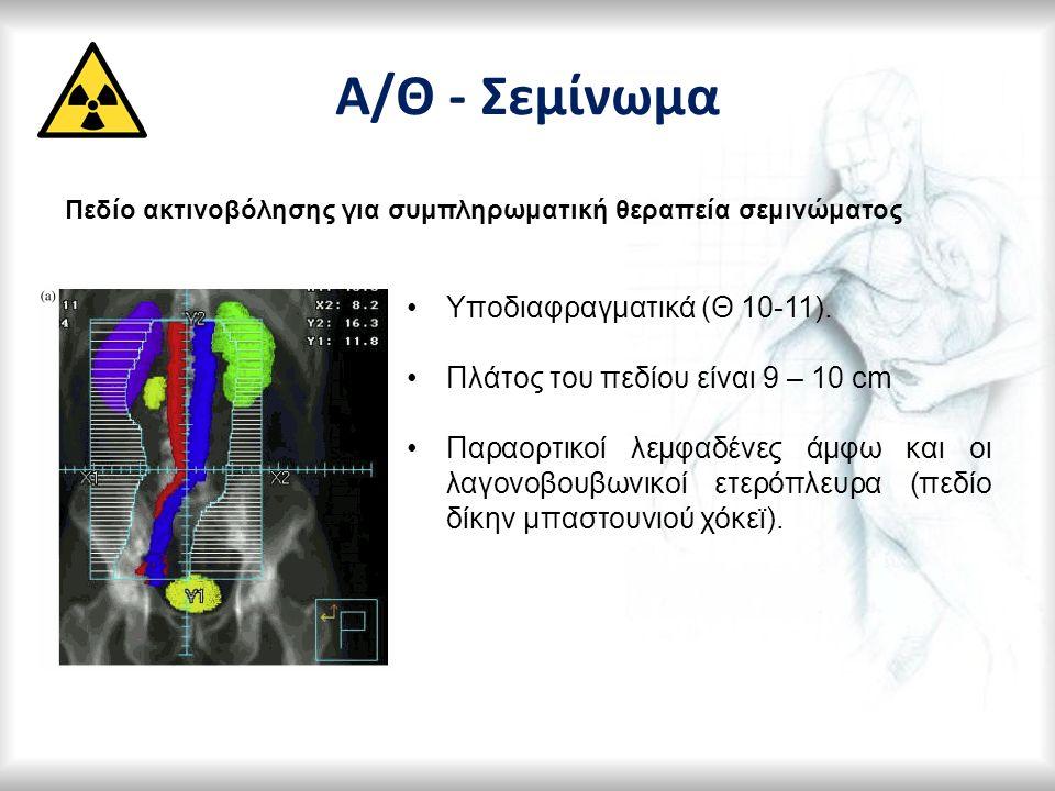 Α/Θ - Σεμίνωμα Πεδίο ακτινοβόλησης για συμπληρωματική θεραπεία σεμινώματος Υποδιαφραγματικά (Θ 10-11). Πλάτος του πεδίου είναι 9 – 10 cm Παραορτικοί λ