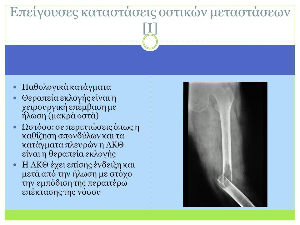 Παθολογικά κατάγματα Θεραπεία εκλογής είναι η χειρουργική επέμβαση με ήλωση (μακρά οστά) Ωστόσο: σε περιπτώσεις όπως η καθίζηση σπονδύλων και τα κατάγματα πλευρών η ΑΚΘ είναι η θεραπεία εκλογής Η ΑΚΘ έχει επίσης ένδειξη και μετά από την ήλωση με στόχο την εμπόδιση της περαιτέρω επέκτασης της νόσου Επείγουσες καταστάσεις οστικών μεταστάσεων [Ι]