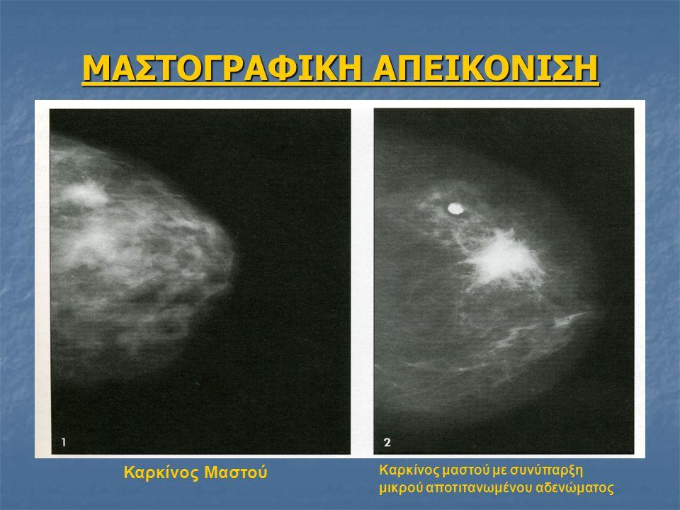 ΜΑΣΤΟΓΡΑΦΙΚΗ ΑΠΕΙΚΟΝΙΣΗ Καρκίνος Μαστού Καρκίνος μαστού με συνύπαρξη μικρού αποτιτανωμένου αδενώματος