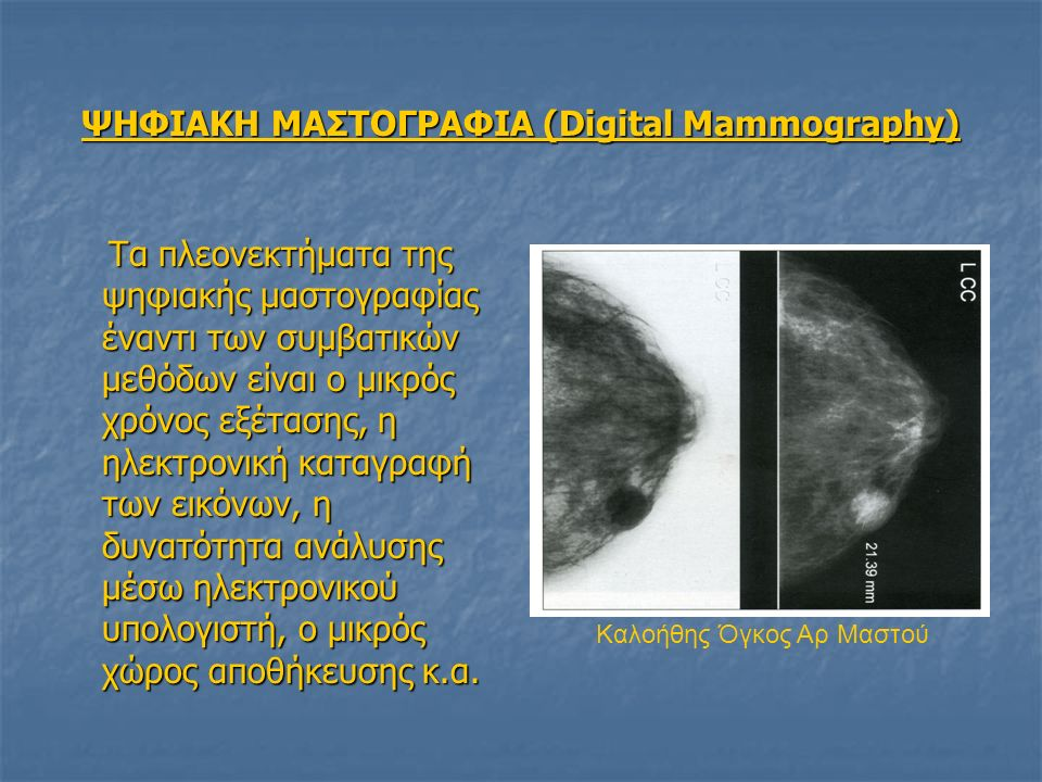 ΨΗΦΙΑΚΗ ΜΑΣΤΟΓΡΑΦΙΑ (Digital Mammography) Τα πλεονεκτήματα της ψηφιακής μαστογραφίας έναντι των συμβατικών μεθόδων είναι ο μικρός χρόνος εξέτασης, η ηλεκτρονική καταγραφή των εικόνων, η δυνατότητα ανάλυσης μέσω ηλεκτρονικού υπολογιστή, ο μικρός χώρος αποθήκευσης κ.α.