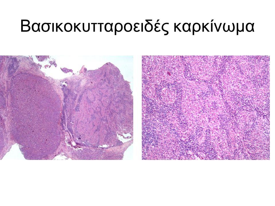 Βασικοκυτταροειδές καρκίνωμα
