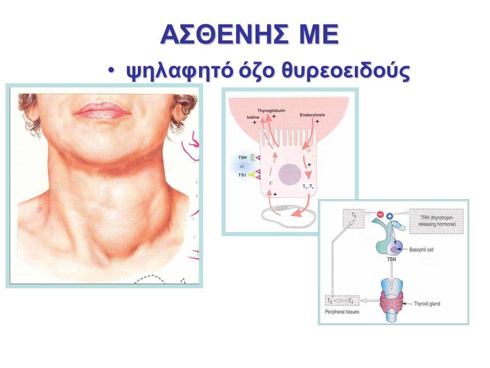 ΑΣΘΕΝΗΣ ΜΕ ψηλαφητό όζο θυρεοειδούςψηλαφητό όζο θυρεοειδούς