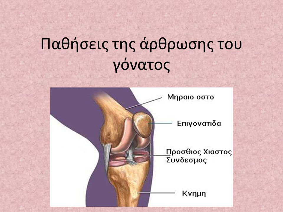 Κλινική εικόνα Πόνος στην οπίσθια επιφάνεια της επιγονατίδας Ύδραρθρος o Πόνος στο ανέβασμα κατέβασμα σκάλας o Διατήρηση καθιστής θέσης για μεγάλο χρονικό διάστημα  Προχωρημένα στάδια: Κριγμό στις κινήσεις του γόνατος Δυσκαμψία της άρθρωσης Οίδημα Αίσθημα αστάθειας του γόνατος