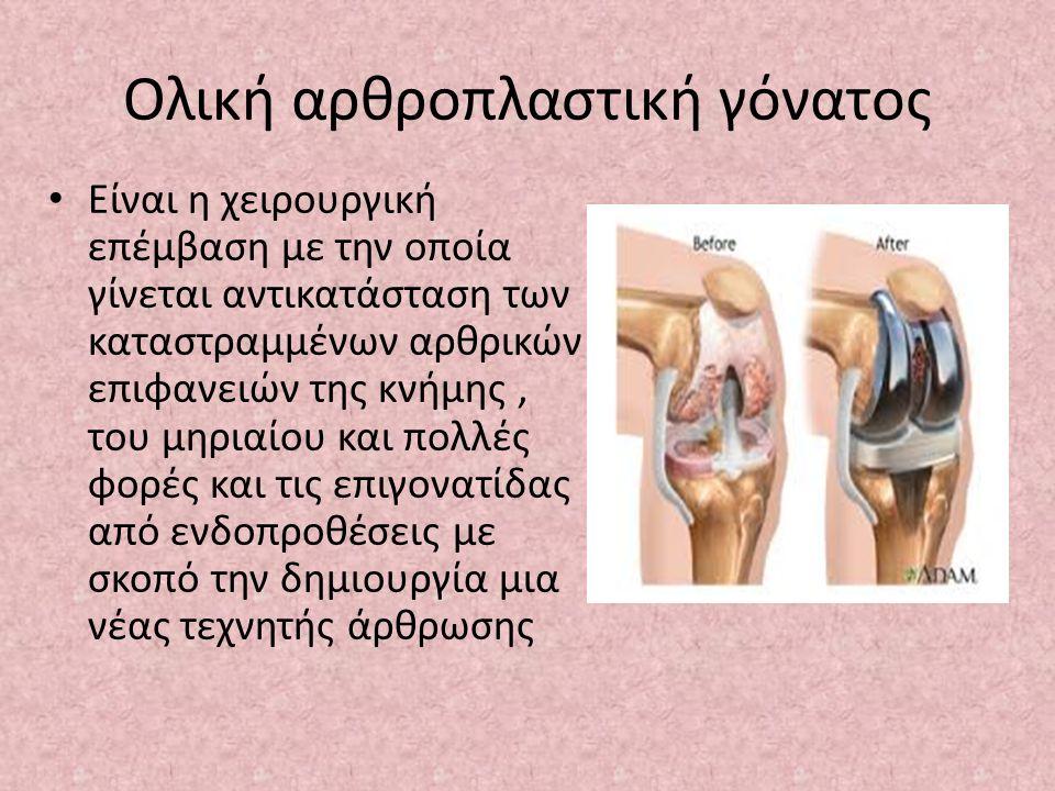 Ολική αρθροπλαστική γόνατος Είναι η χειρουργική επέμβαση με την οποία γίνεται αντικατάσταση των καταστραμμένων αρθρικών επιφανειών της κνήμης, του μηριαίου και πολλές φορές και τις επιγονατίδας από ενδοπροθέσεις με σκοπό την δημιουργία μια νέας τεχνητής άρθρωσης