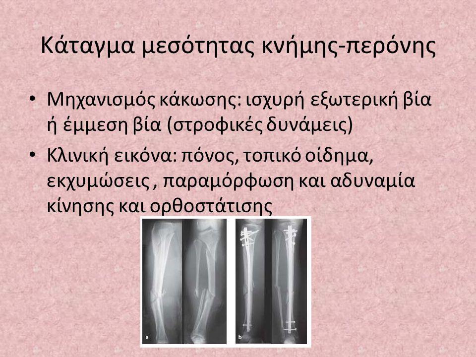 Κάταγμα μεσότητας κνήμης-περόνης Μηχανισμός κάκωσης: ισχυρή εξωτερική βία ή έμμεση βία (στροφικές δυνάμεις) Κλινική εικόνα: πόνος, τοπικό οίδημα, εκχυ