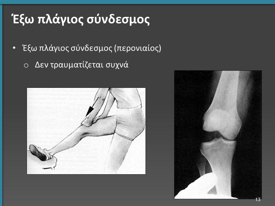 Έξω πλάγιος σύνδεσμος (περονιαίος) o Δεν τραυματίζεται συχνά 13 Έξω πλάγιος σύνδεσμος