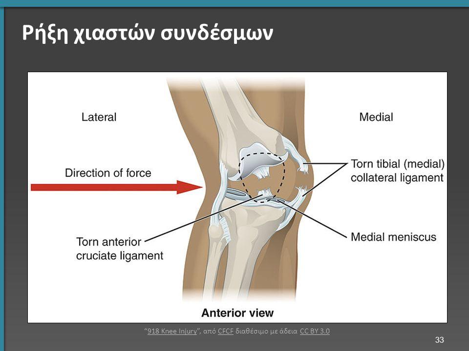 Ρήξη χιαστών συνδέσμων 33 918 Knee Injury , από CFCF διαθέσιμο με άδεια CC BY 3.0918 Knee InjuryCFCFCC BY 3.0