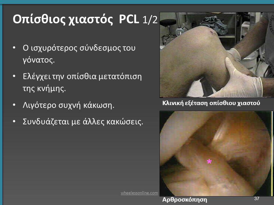Ο ισχυρότερος σύνδεσμος του γόνατος. Ελέγχει την οπίσθια μετατόπιση της κνήμης.