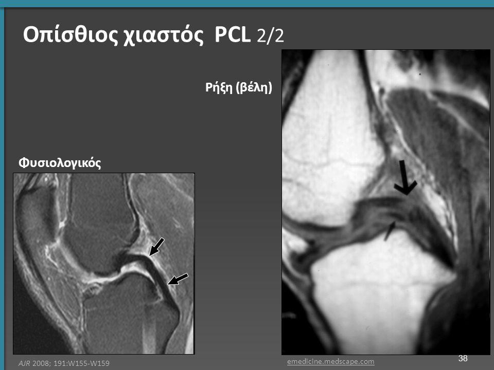 Φυσιολογικός Ρήξη (βέλη) AJR 2008; 191:W155-W159 emedicine.medscape.com 38 Οπίσθιος χιαστός PCL 2/2