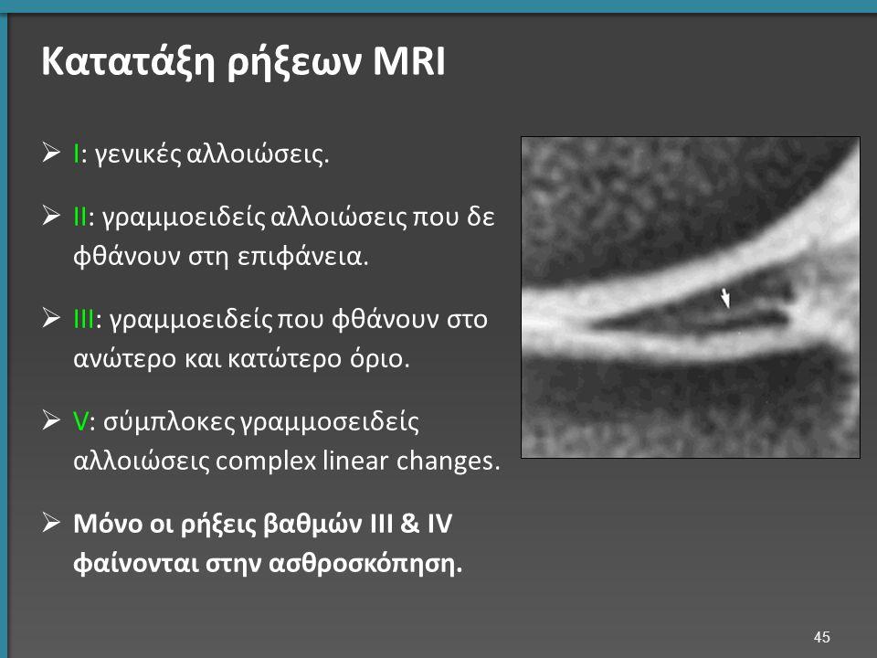 Κατατάξη ρήξεων MRI  I: γενικές αλλοιώσεις.
