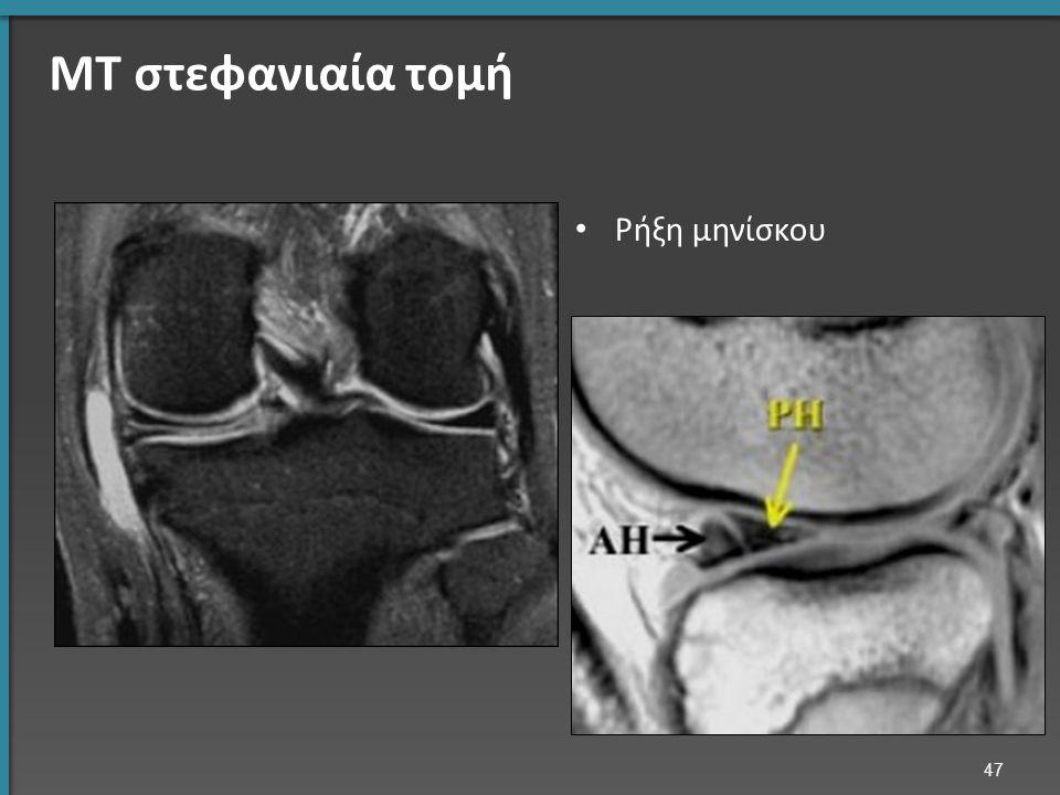 ΜΤ στεφανιαία τομή Ρήξη μηνίσκου 47