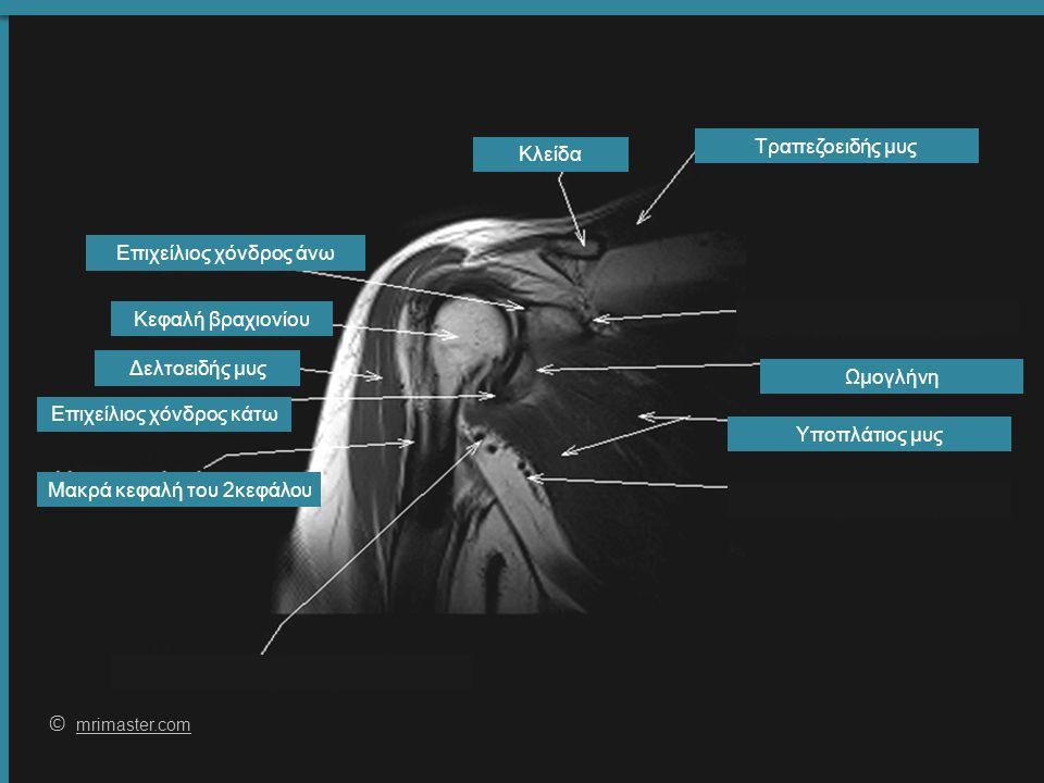 57 © mrimaster.com mrimaster.com Κλείδα Επιχείλιος χόνδρος άνω Δελτοειδής μυς Υποπλάτιος μυς Τραπεζοειδής μυς Κεφαλή βραχιονίου Μακρά κεφαλή του 2κεφάλου Επιχείλιος χόνδρος κάτω Ωμογλήνη