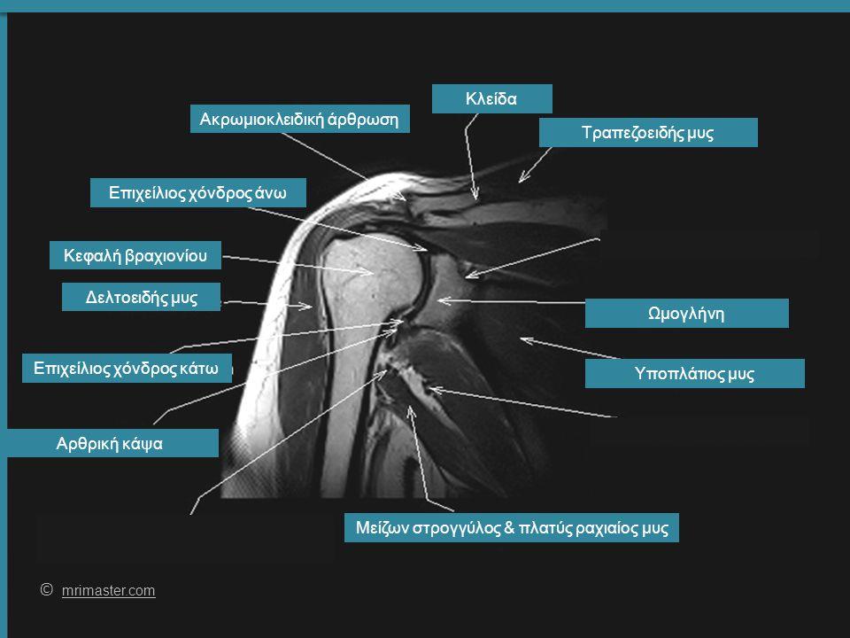 59 © mrimaster.com mrimaster.com Κλείδα Επιχείλιος χόνδρος άνω Δελτοειδής μυς Υποπλάτιος μυς Τραπεζοειδής μυς Κεφαλή βραχιονίου Αρθρική κάψα Επιχείλιος χόνδρος κάτω Ωμογλήνη Μείζων στρογγύλος & πλατύς ραχιαίος μυς Ακρωμιοκλειδική άρθρωση