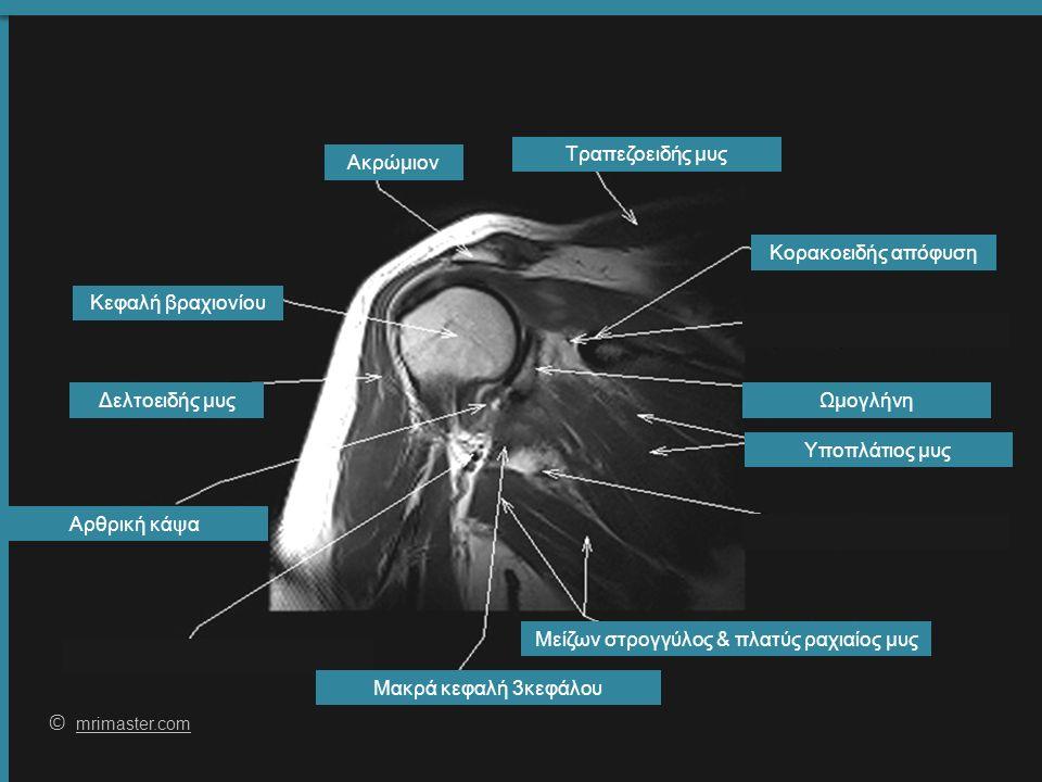 61 © mrimaster.com mrimaster.com Δελτοειδής μυς Υποπλάτιος μυς Τραπεζοειδής μυς Κεφαλή βραχιονίου Αρθρική κάψα Ωμογλήνη Μείζων στρογγύλος & πλατύς ραχιαίος μυς Ακρώμιον Μακρά κεφαλή 3κεφάλου Κορακοειδής απόφυση