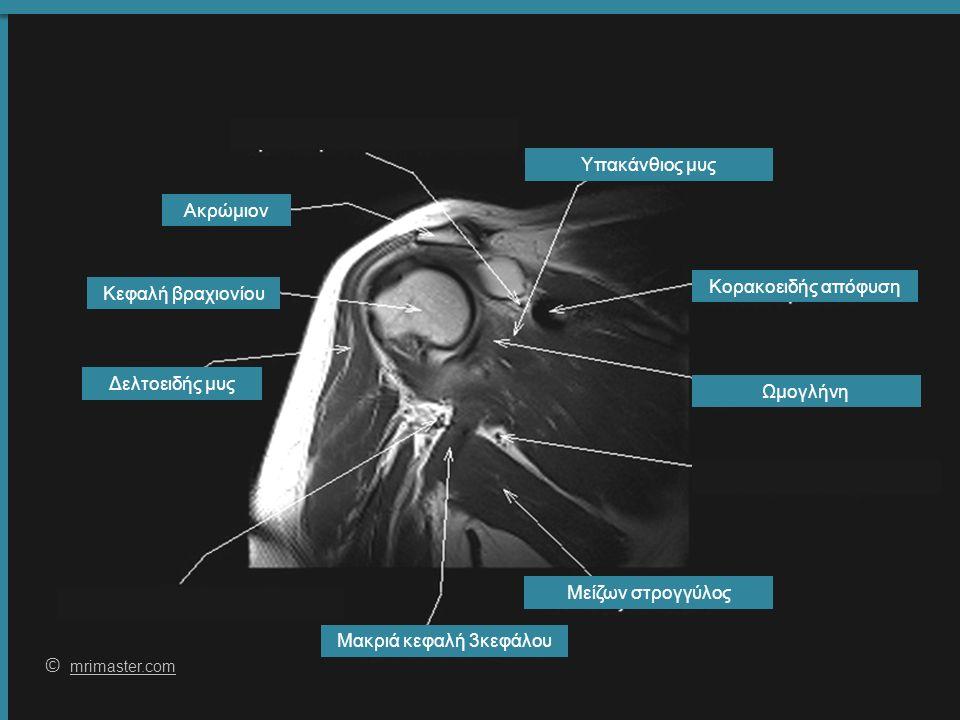 62 © mrimaster.com mrimaster.com Δελτοειδής μυς Μακριά κεφαλή 3κεφάλου Υπακάνθιος μυς Κεφαλή βραχιονίου Ωμογλήνη Μείζων στρογγύλος Ακρώμιον Κορακοειδής απόφυση