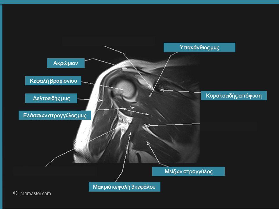 63 © mrimaster.com mrimaster.com Δελτοειδής μυς Μακριά κεφαλή 3κεφάλου Υπακάνθιος μυς Κεφαλή βραχιονίου Μείζων στρογγύλος Ακρώμιον Κορακοειδής απόφυση Ελάσσων στρογγύλος μυς
