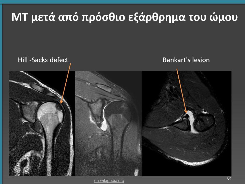 ΜΤ μετά από πρόσθιο εξάρθρημα του ώμου Hill -Sacks defect Bankart s lesion 81 en.wikipedia.org