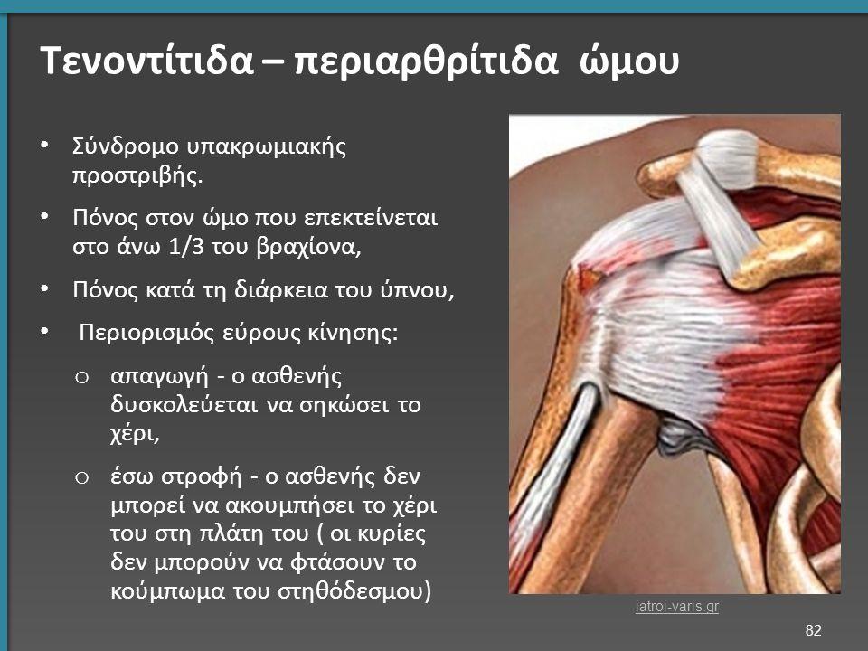 Τενοντίτιδα – περιαρθρίτιδα ώμου Σύνδρομο υπακρωμιακής προστριβής.
