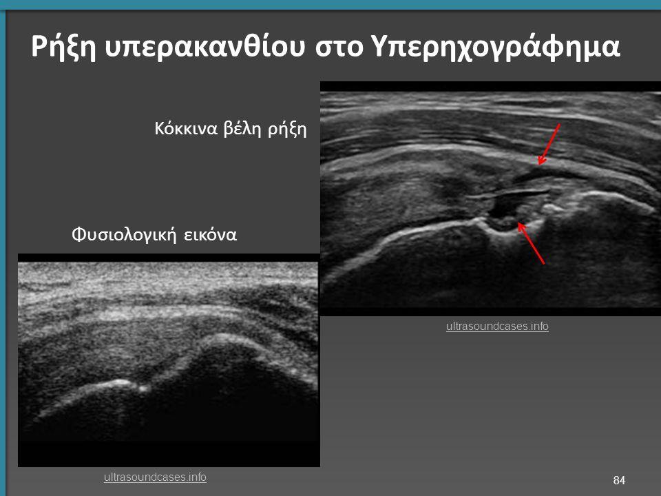 Ρήξη υπερακανθίου στο Υπερηχογράφημα Κόκκινα βέλη ρήξη Φυσιολογική εικόνα 84 ultrasoundcases.info