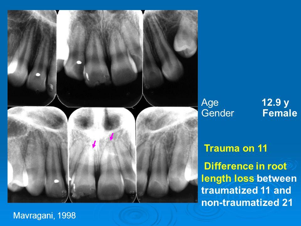 ΤΡΑΥΜΑ (Malmgren και συν., 1982; Linge και Linge, 1983; Brin και συν., 1991) ΑΥΤΟΜΕΤΑΜΟΣΧΕΥΣΗ Μικρής έκτασης ανάλογης φυσιολογικών Oρθοδοντική μετακίνηση τουλάχιστον μετά 3 μήνες (Paulsen και συν., 1995)