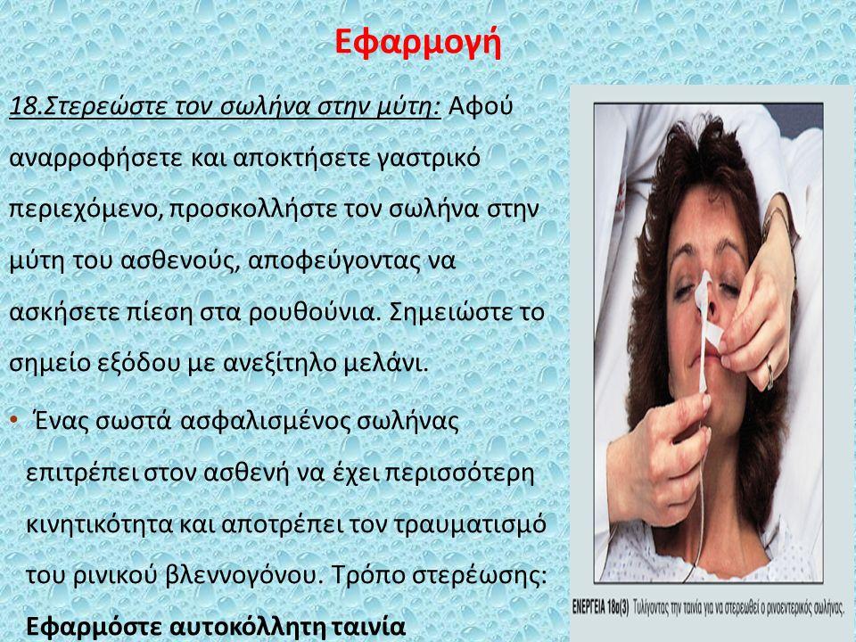 Εφαρμογή 18.Στερεώστε τον σωλήνα στην μύτη: Αφού αναρροφήσετε και αποκτήσετε γαστρικό περιεχόμενο, προσκολλήστε τον σωλήνα στην μύτη του ασθενούς, αποφεύγοντας να ασκήσετε πίεση στα ρουθούνια.