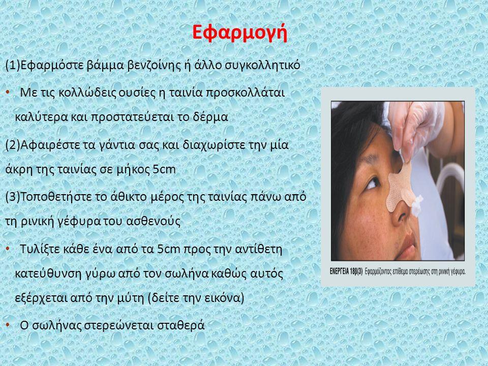 Εφαρμογή (1)Εφαρμόστε βάμμα βενζοίνης ή άλλο συγκολλητικό Με τις κολλώδεις ουσίες η ταινία προσκολλάται καλύτερα και προστατεύεται το δέρμα (2)Αφαιρέσ