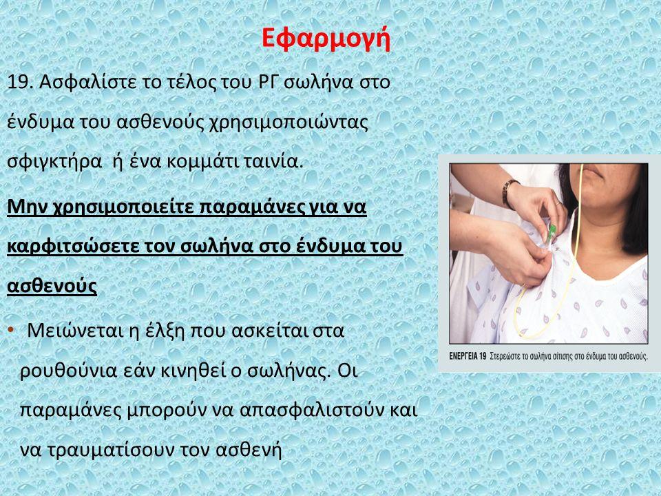 Εφαρμογή 19. Ασφαλίστε το τέλος του ΡΓ σωλήνα στο ένδυμα του ασθενούς χρησιμοποιώντας σφιγκτήρα ή ένα κομμάτι ταινία. Μην χρησιμοποιείτε παραμάνες για